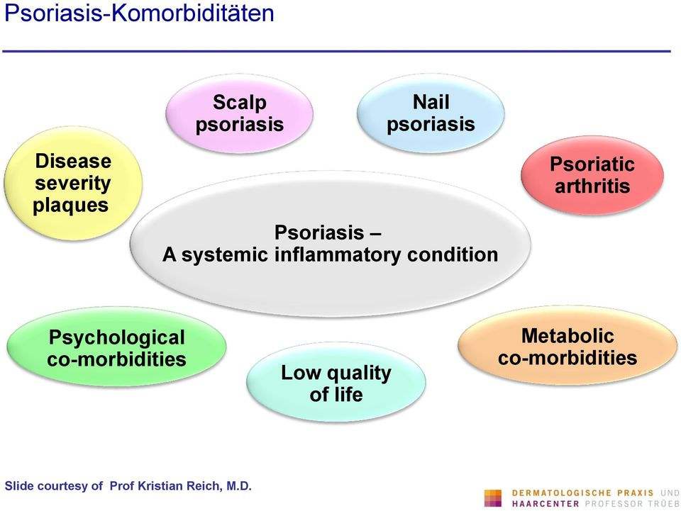 Psoriatic arthritis Psychological co-morbidities Low quality of