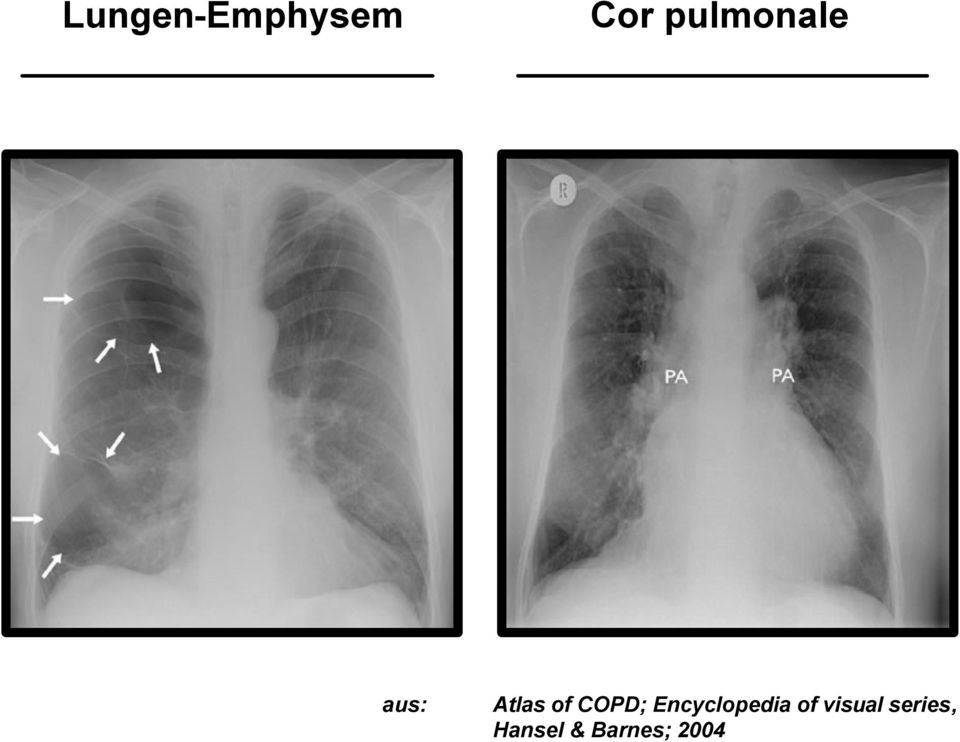 COPD; Encyclopedia of