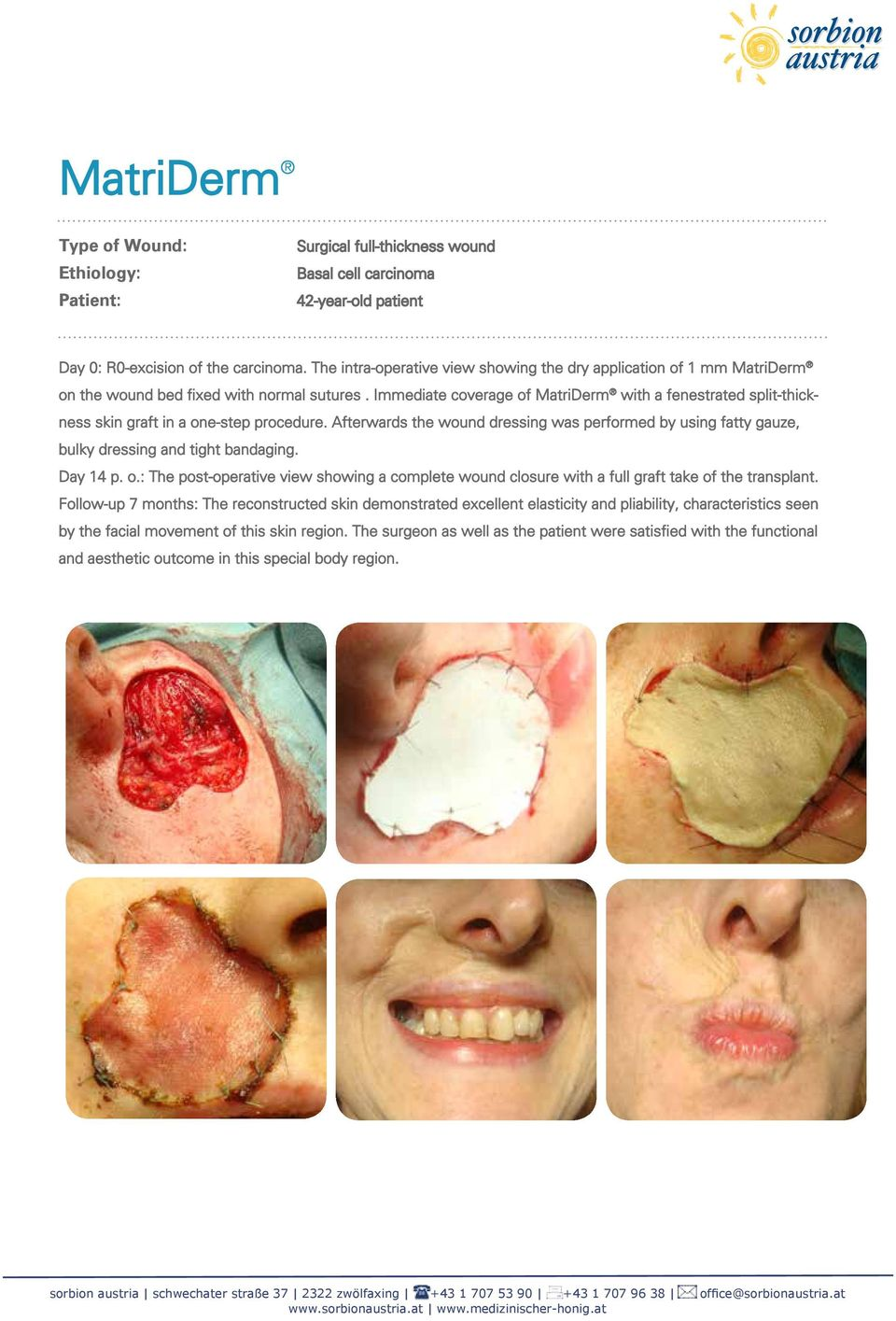Immediate coverage of MatriDerm with a fenestrated split-thickness skin graft in a one-step procedure.