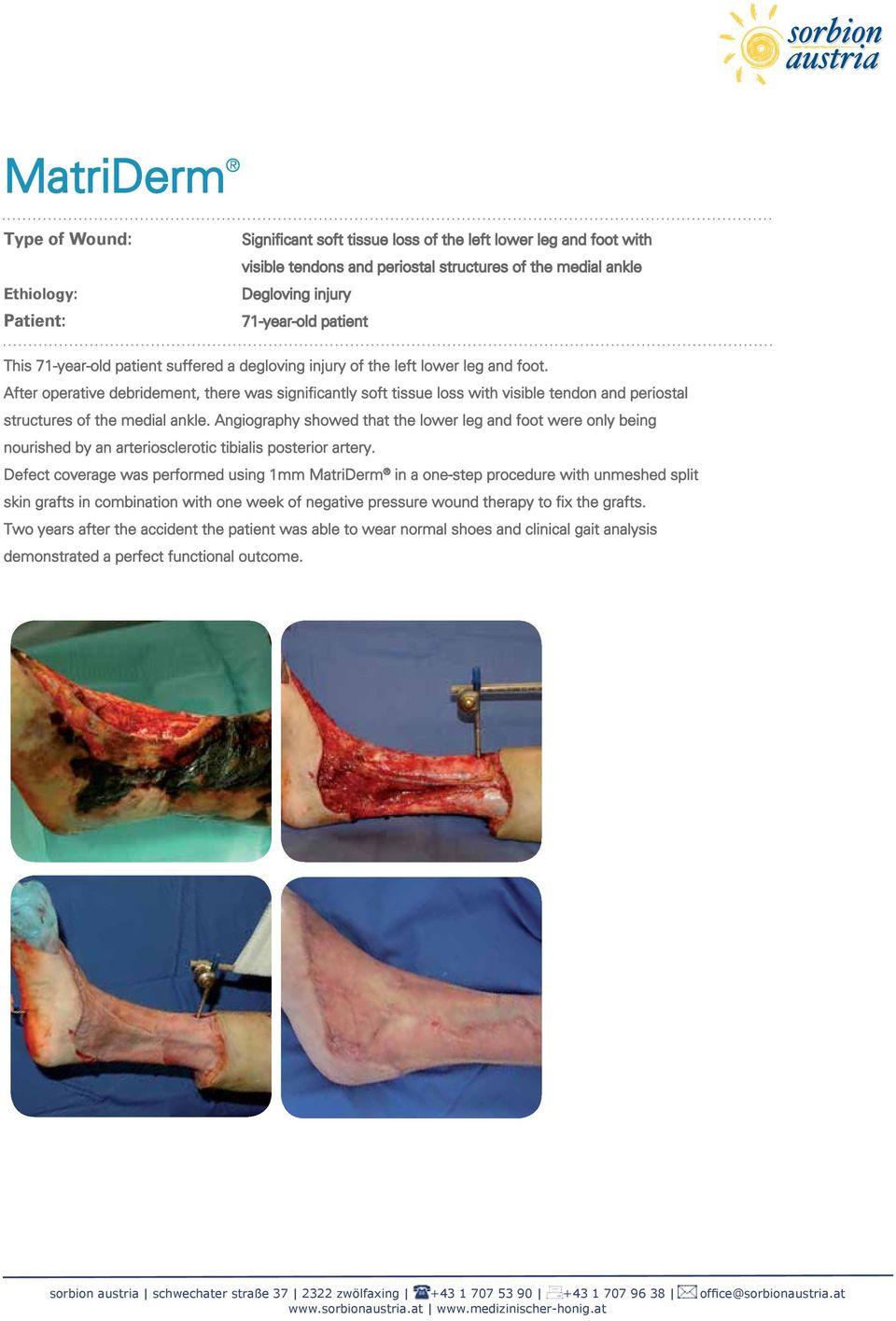 After operative debridement, there was significantly soft tissue loss with visible tendon and periostal structures of the medial ankle.