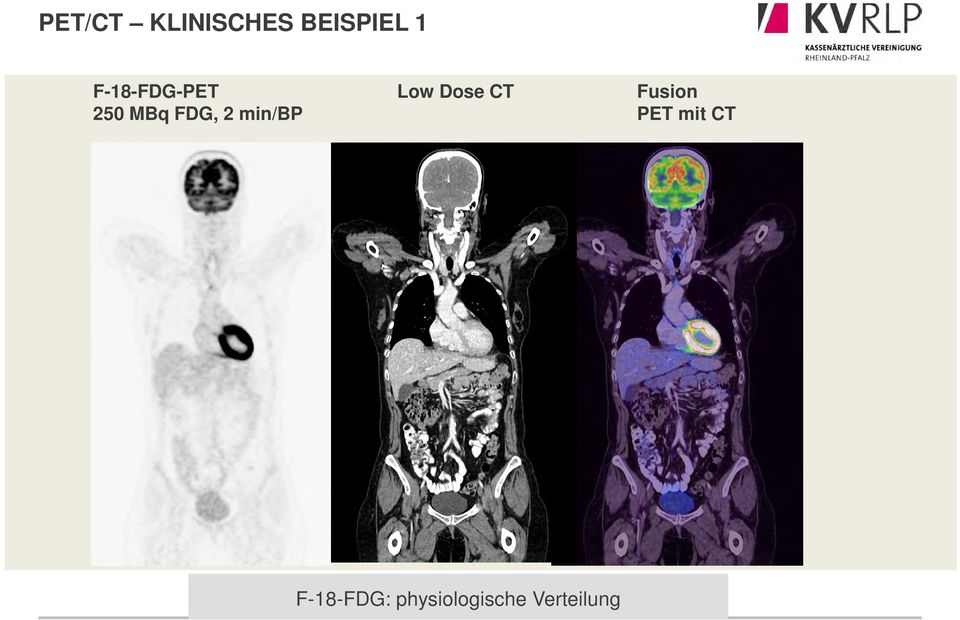 min/bp Low Dose CT Fusion PET