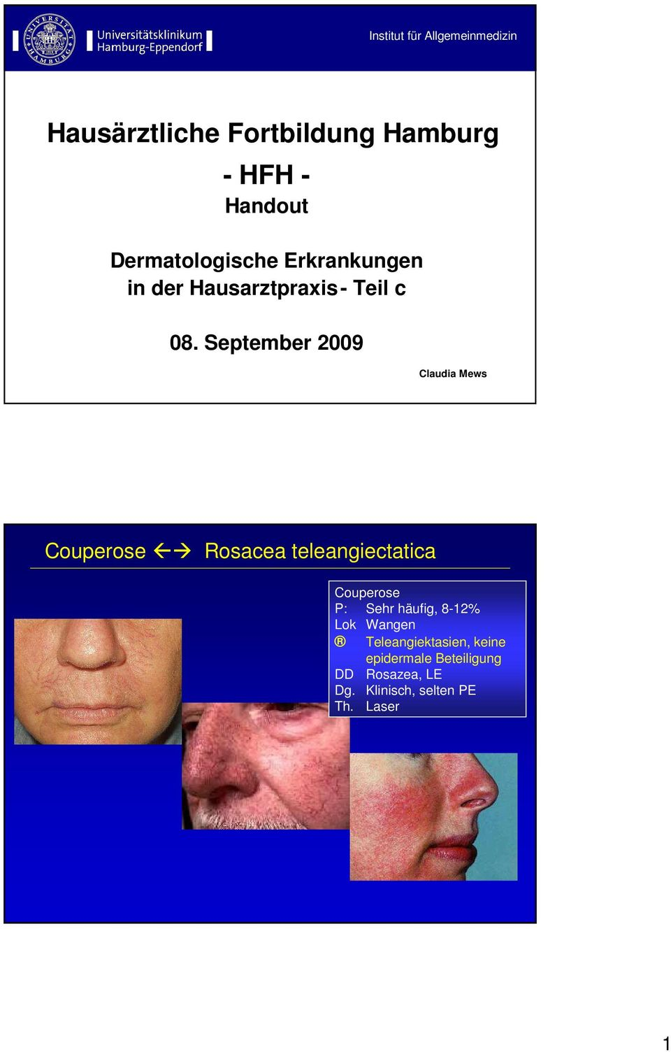 September 2009 Claudia Mews Couperose Rosacea teleangiectatica Couperose P: Sehr