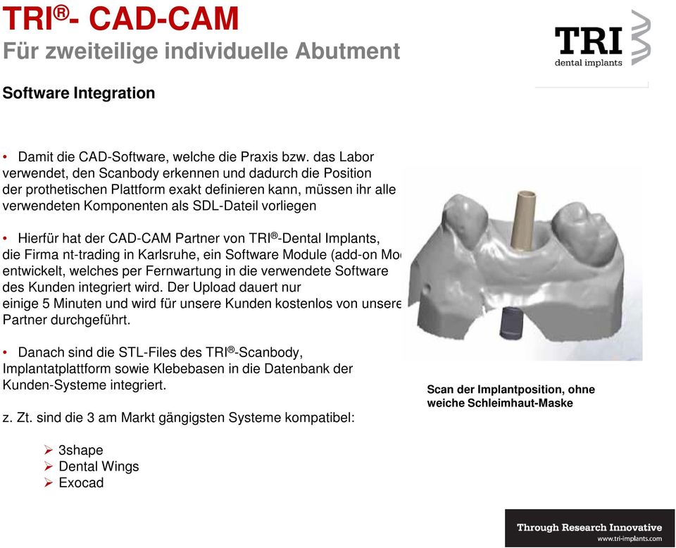 CAD-CAM Partner von TRI -Dental Implants, die Firma nt-trading in Karlsruhe, ein Software Module (add-on Module) entwickelt, welches per Fernwartung in die verwendete Software des Kunden integriert