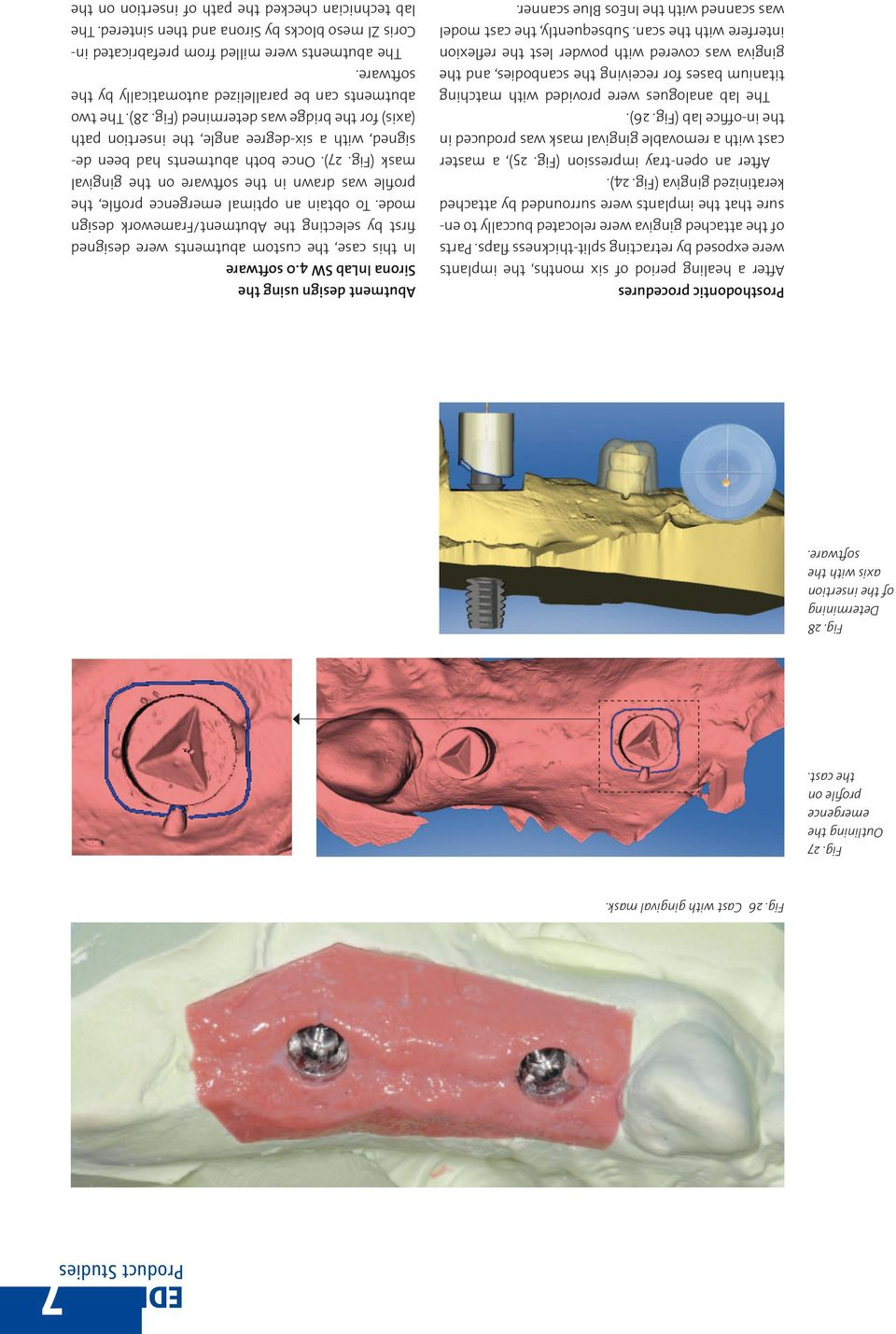 Parts of the attached gingiva were relocated buccally to ensure that the implants were surrounded by attached keratinized gingiva (Fig. 24). After an open-tray impression (Fig.