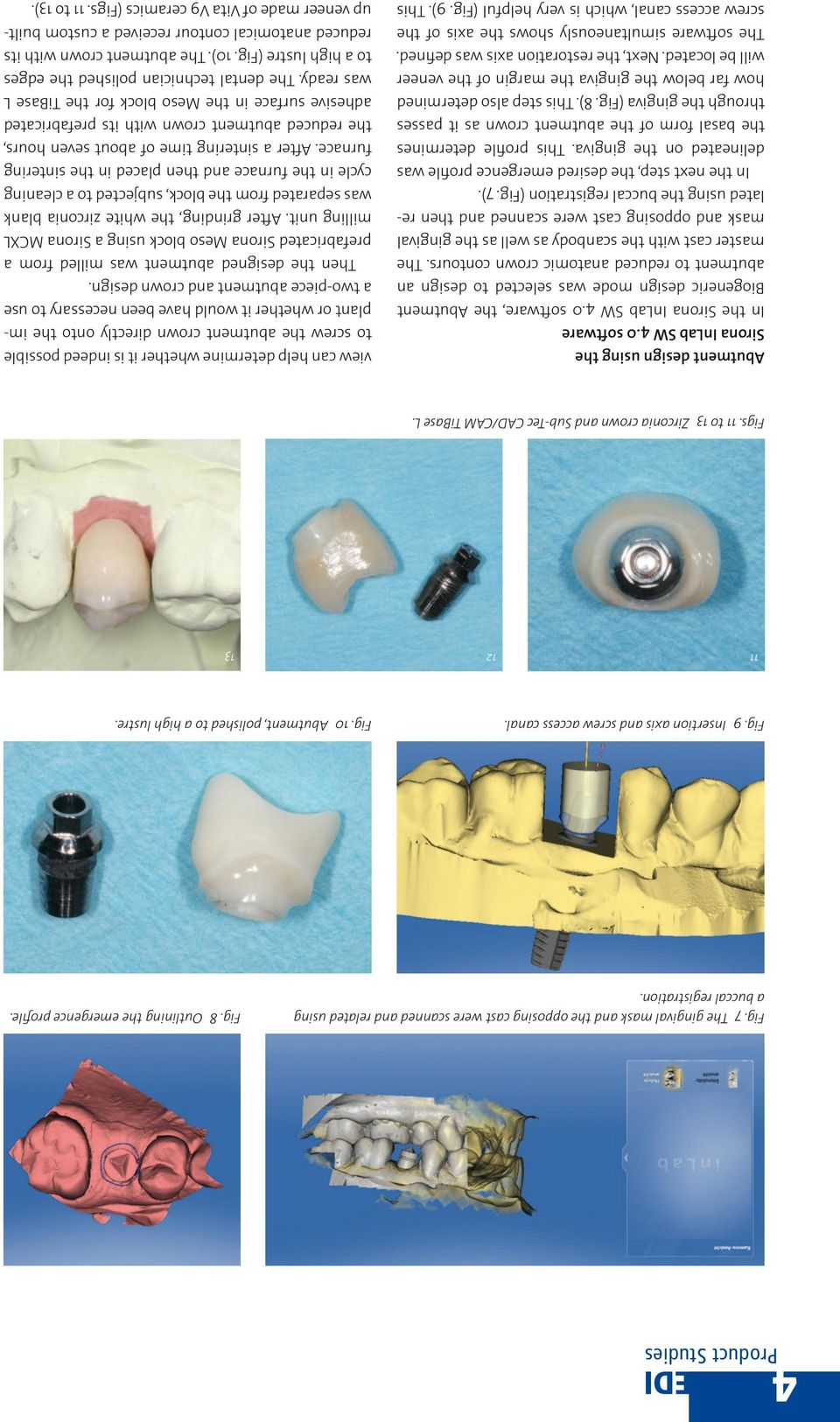 0 software, the Abutment Biogeneric design mode was selected to design an abutment to reduced anatomic crown contours.