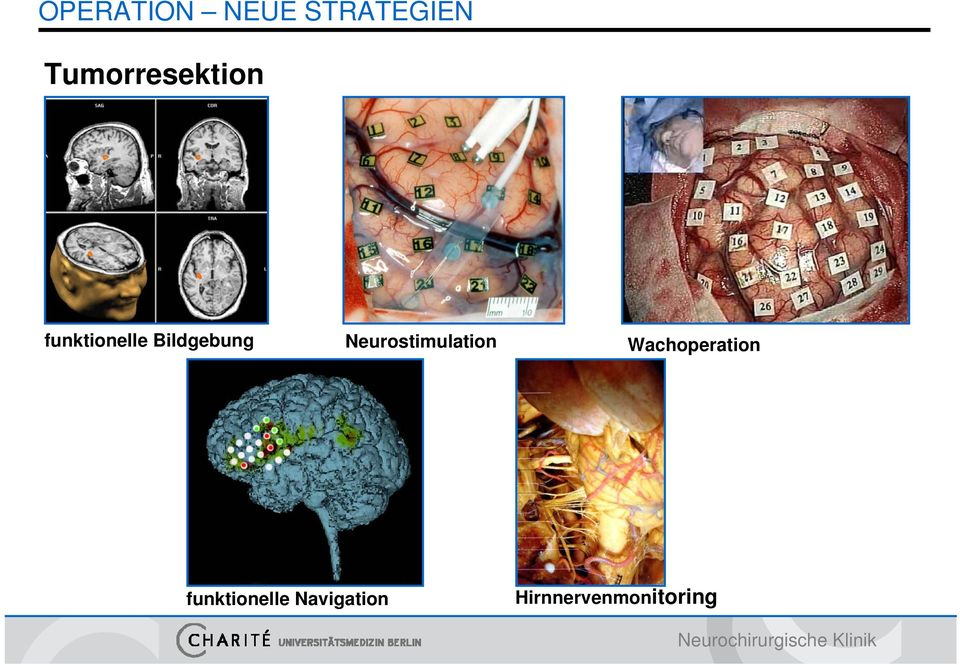 Bildgebung Neurostimulation