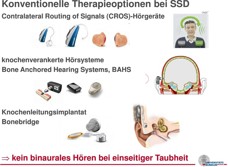Hörsysteme Bone Anchored Hearing Systems, BAHS