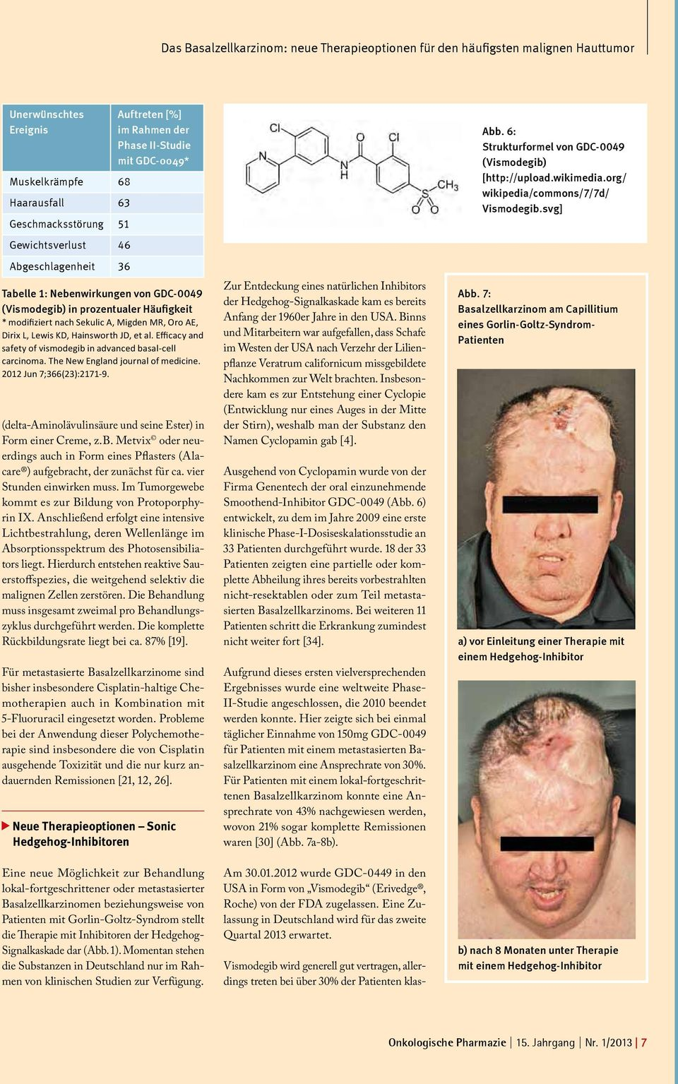 Lewis KD, Hainsworth JD, et al. Efficacy and safety of vismodegib in advanced basal-cell carcinoma. The New England journal of medicine. 2012 Jun 7;366(23):2171-9.