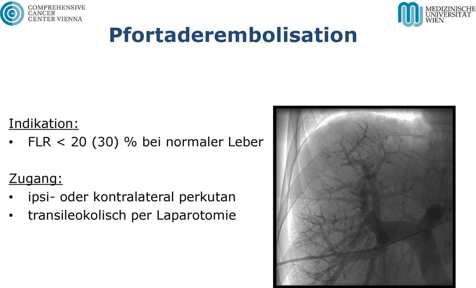 Zugang: ipsi- oder kontralateral