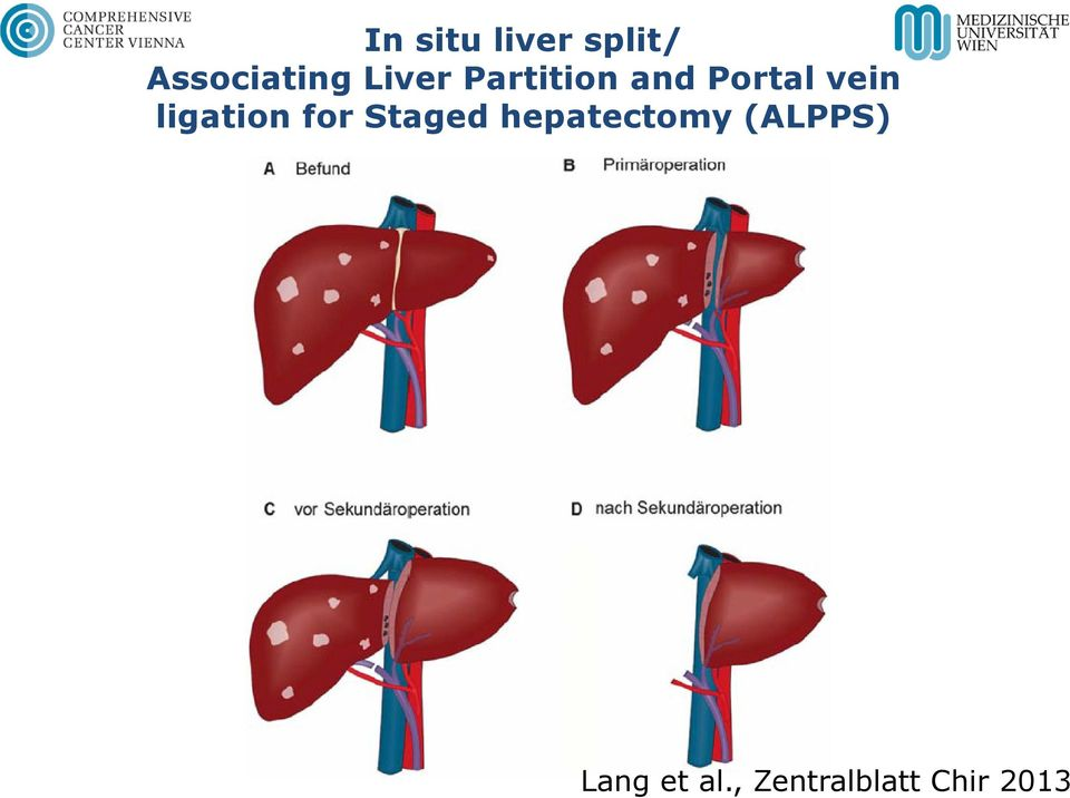 ligation for Staged hepatectomy