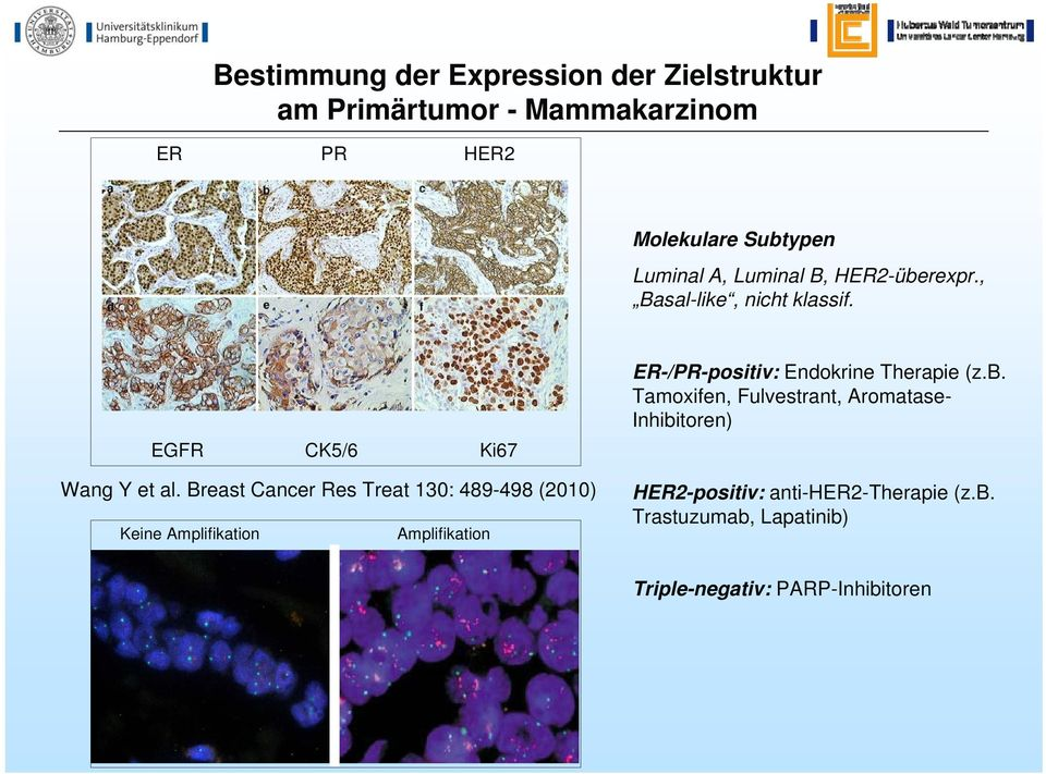 Breast Cancer Res Treat 130: 489-498 (2010) Keine Amplifikation Amplifikation ER-/PR-positiv: Endokrine Therapie (z.