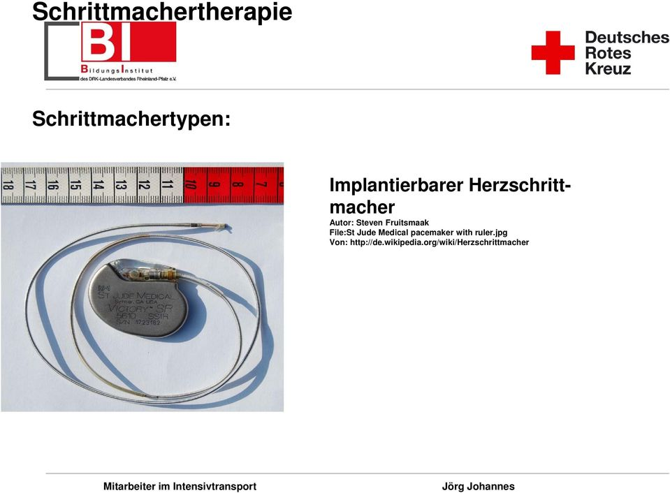 Medical pacemaker with ruler.
