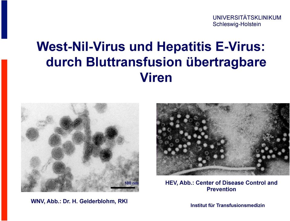 : Center of Disease Control and Prevention WNV, Abb.