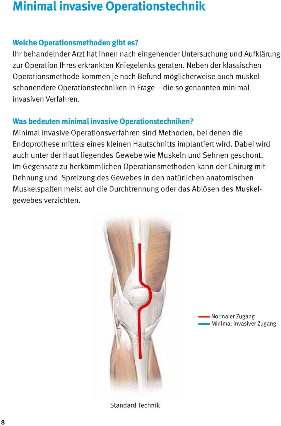 Was bedeuten minimal invasive Operationstechniken? Minimal invasive Operationsverfahren sind Methoden, bei denen die Endoprothese mittels eines kleinen Hautschnitts implantiert wird.