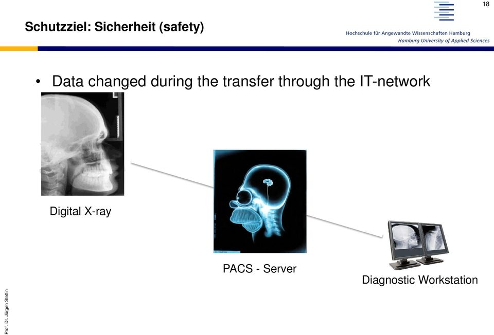 IT-network Digital X-ray PACS - Server