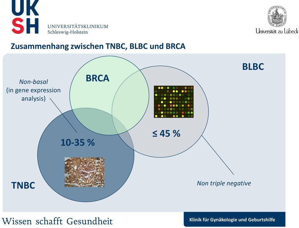expression analysis) BRCA BLBC