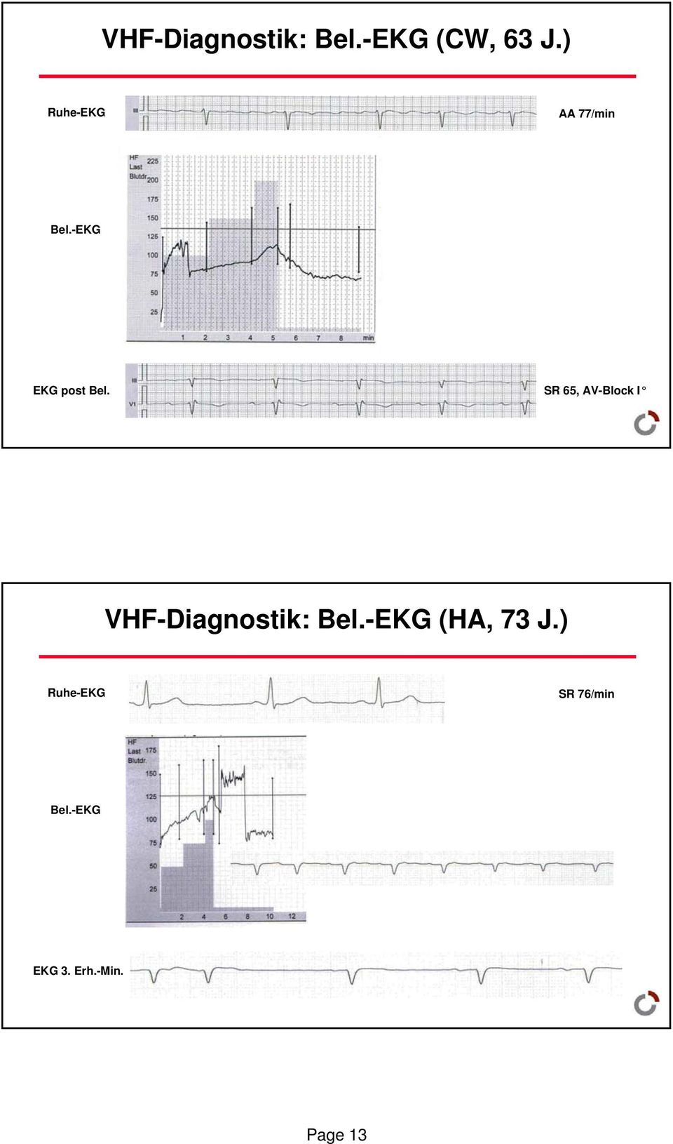 SR 65, AV-Block I VHF-Diagnostik: Bel.