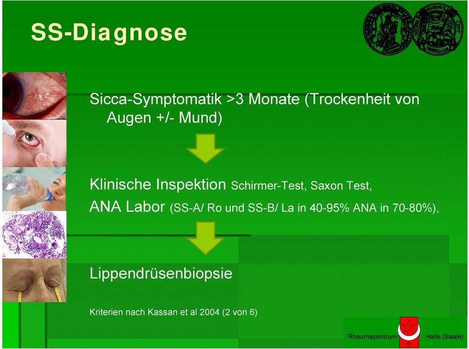 Test, ANA Labor (SS-A/ Ro und SS-B/ La in 40-95% ANA in