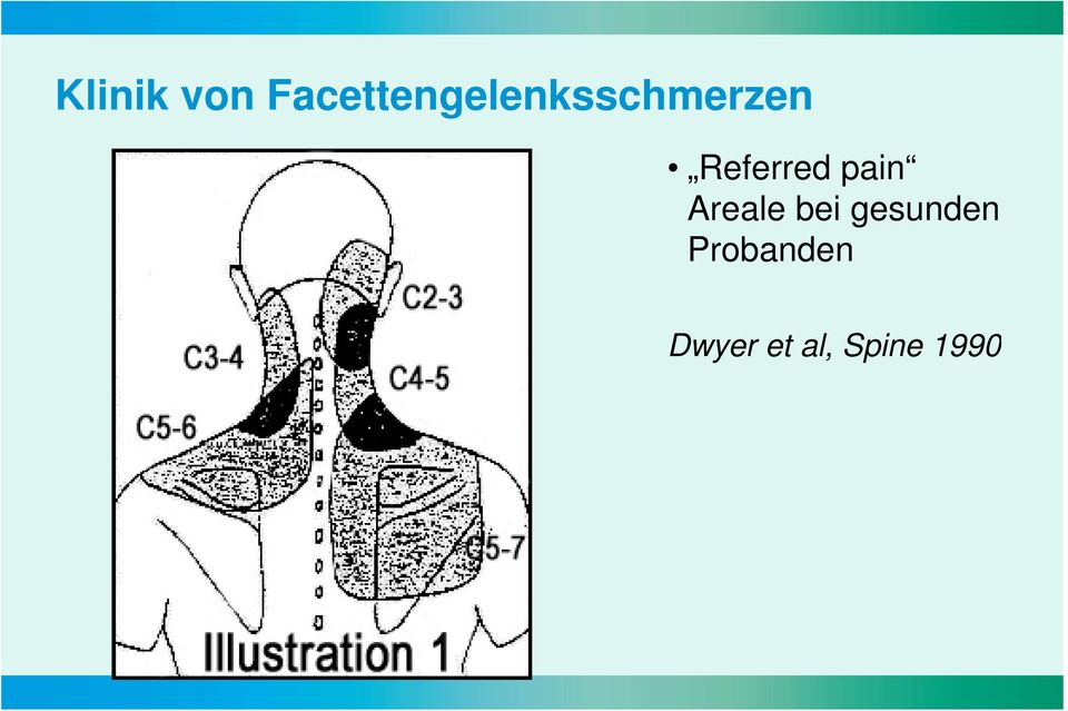 Referred pain Areale bei