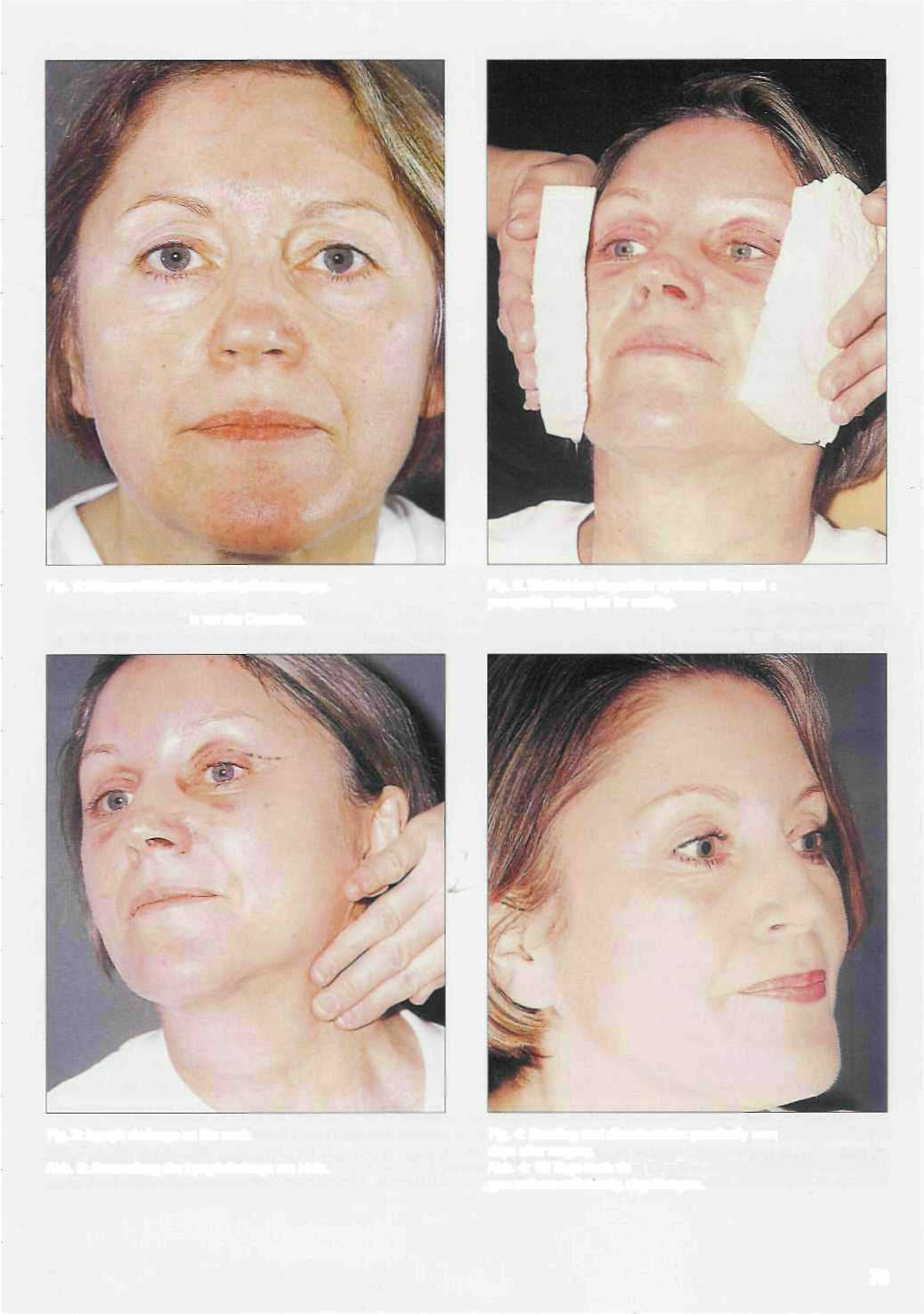 Aesthetic Facial Surgery 28