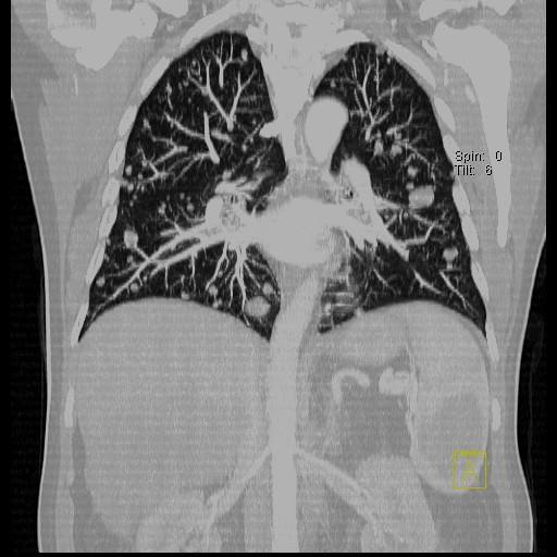 CT-Thorax